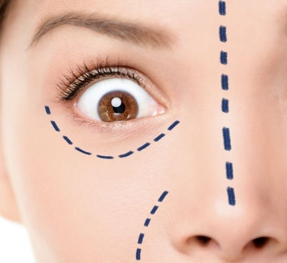 Cosmetic surgery lines drawn on face
